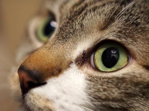 追従性眼球運動とは